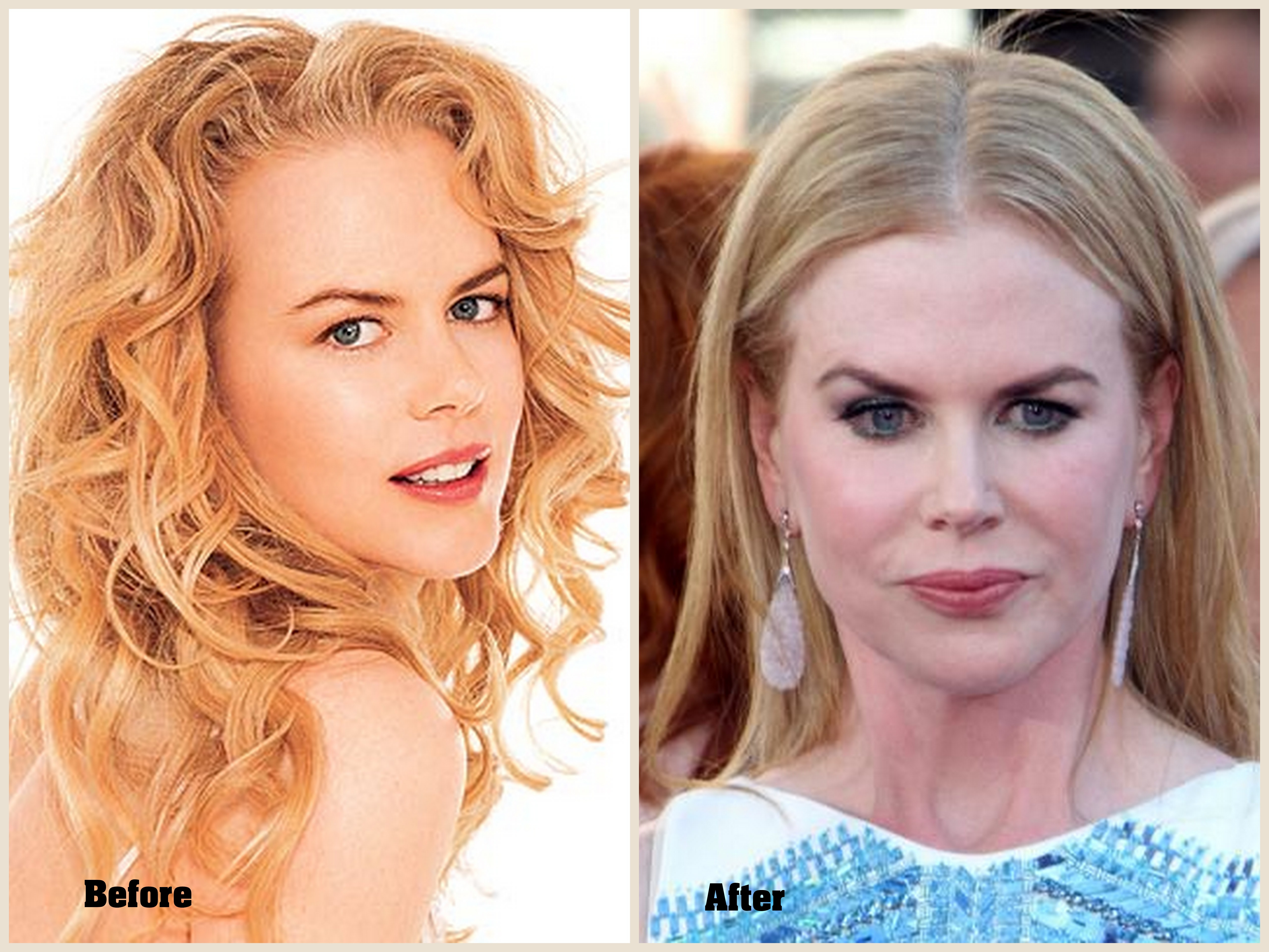 Nicole-Kidman-Plastic-Surgery-Photo