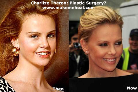 charlize-theron-plastic-surgery